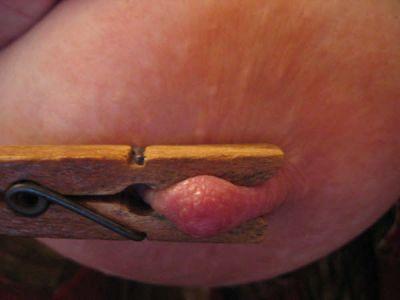 """Las pinzas de madera con muelle para colgar ropa pueden servir muy bien como pinzas eróticas en los pezones, genitales y otros puntos. Cierto tipo de pinzas que pueden encontrarse en las tiendas de papelería y material de oficina también son útiles. Hay que tener en cuenta que al pinzar en un área, se deja a ésta sin circulación sanguínea. Los expertos varían en sus apreciaciones sobre el tiempo que pueden mantenerse puestas las pinzas, pero todos expresan su opinión en términos de minutos. Las pinzas duelen especialmente al retirarlas. Se recomienda aquí la experimentación sobre uno mismo. 15. - No intentes efectuar """"piercing"""" u otras actividades que impliquen atravesar la piel, a menos que poseas o lo hagas bajo la supervisión de alguien con profundos conocimientos sobre el tema."""
